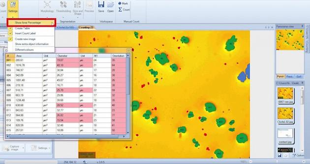 Logiciel analyse et traitement d'images en microscopie